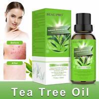 Tea Tree Oil Bio Olio Tea Tree Puro 100% Naturale Olio Essenziale Tea Tree 30Ml.