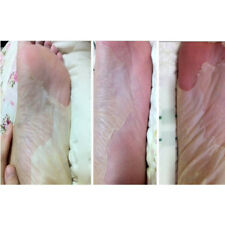 Socks Exfoliating Foot Mask - Removes Calluses To Reveal Baby Feet Exfoliation