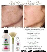 40% GLYCOLIC acid Medical Grade SKIN PEEL 100% Pure Natural Wrinkles DARK SPOTS