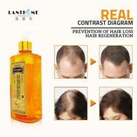 300ml Anti Hair Loss Baldness Dandruff Oil control Anti off Ginger Shampoo