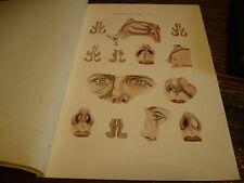Planches/gravures science médecine Maladie du nez planche 1 an 1920 (ORL)