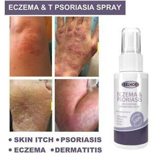 10-50ml Body Anti-fungal spray For skin problems P7O4