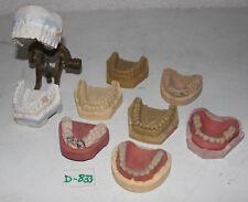 Zahntechnik Zahnmodelle mit Messing Klipp-Klapp Artikulator Art. Nr. D-833