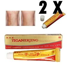 Chinese Herbal Cream for Eczema Skin Rash Psoriasis, Hong Kong foot, Vitiligo