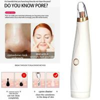 Vacuum Blackhead Acne Cleaner Pore Suction Remover Electric Skin Care Cleanser