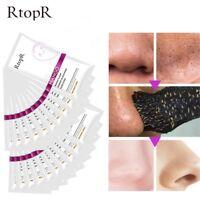 psychiater poren nase maske akne - behandlung blackhead whitehead - entferner