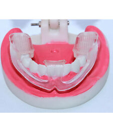 Silicone Dental Mouth Guard Bruxism Sleep Aid Night Teeth TMJ Tooth Grinding