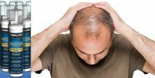 .3 x Supply Mens Hair foam Minoxdil