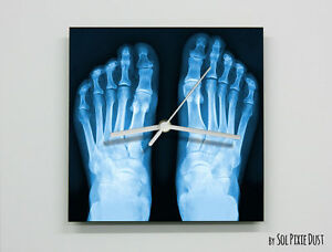 X-Ray Foot - Wall Clock