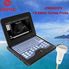 SALE! B-ultrasound Scanner ultrasound Diagnostic + 3.5mhz convex probe
