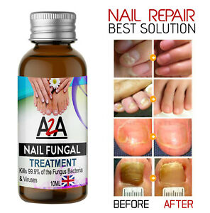 10ML Fungal Nail Treatment Highly Effective Kill Nail Fungus For Best Result UK