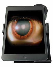 Hans Heiss Digital Eyepiece Adapter For Slit Lamp HDA003