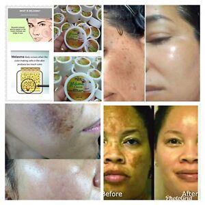 Melasma Cream Remove Dark Sun Spot Acne Pimples Freckles Anti-Aging Scars