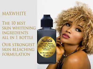 KOJIC ACID Serum Skin Bleaching Whitening ARBUTIN GLUTATHIONE NIACINAMIDE 35ml