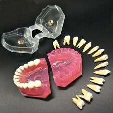BEST Dental Teeth Model Study Teach Standard with Removable Teeth 1PcNew.