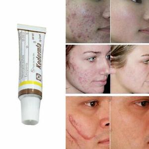 Snake Oil Remove Scar Acne Spots Pigmentation Striae Corrector Face Cream 5g L