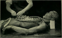 Antique Post Mortem Autopsy Photo 354 Bizarre Odd Strange