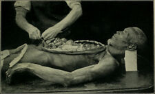 Antique Post Mortem Autopsy Photo Bizarre Odd Freaky Strange