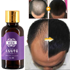 Hair Loss Products Natural  With No Side Effect Grow Hair Faster Regrowth Oil