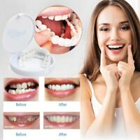 Perfect Smile Teeth Cosmetic Veneers Snap On Comfort Covers Fix One Size