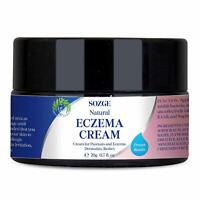 SOZGE Eczema Cream for Psoriasis and Eczema, Dermatitis and Rashes Instant Relie