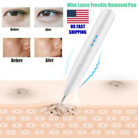 Electric Laser Skin Tag Freckle Dot Mole Remove Pen Dark Spot Tattoo Removal Pen