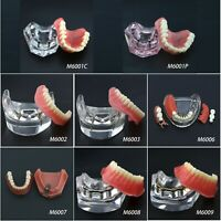 Dental Implant Overdenture Model NISSIN Kilgore Style Patient Education