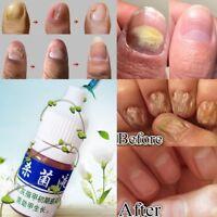 Hautpflege Nagel Repair Behandlung Cleanser Flüssigkeit Nagelpilz Entfernen