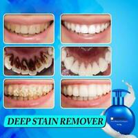 Intensive Stain Removal Whitening Toothpaste Fight Gums Bleeding Care P2B5