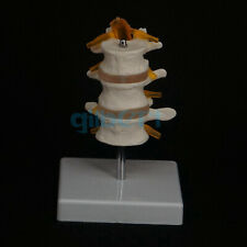 Life Size Three Section Lumbar Spine Skeleton Model With Stand Medical Teaching