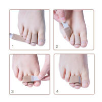 20pcs Toe Corrector Separator Wrap Bandages for Bunion Splints Hammer Toe Savior