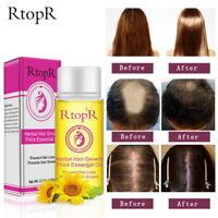 RtopR Hair Growth Anti Hair Loss Liquid Promote Thick Fast Hair Growth Treatment