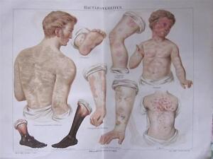 Antique Medical Print-SKIN DISEASES-Meyers-Circa 1892 Skin Disease Atlas Colour