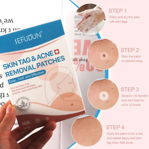 108pcs Natural Painless Auto Skin Tag Removal Kit Skintag Bands Remover Patches