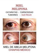 AUTÉNTICA MIEL MELIPONA HONEY EYES DROPS 20 ML CATARATAS, CARNOSIDAD, CATARATAS