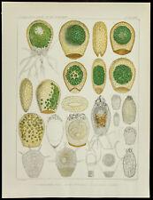 1879 - Planche médecine amibe - Heleopera Picta / Petricola / Nebela Caudata - L