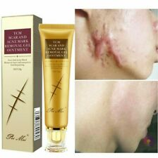 30g Acne Scar Removal Cream Pimples Stretch Marks Face Gel Remove Acne Smoothing