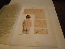 Planche/gravure science corps humain anatomie squelette  Varicelle