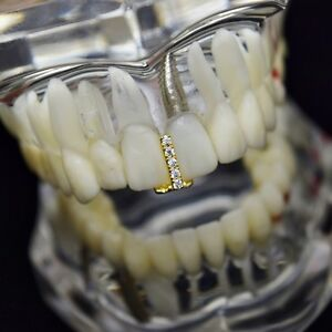 CZ Gap Grillz 14k Gold Plated Single Tooth Bling Out Top or Bottom Iced Teeth