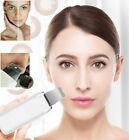 Skin Scrubber Shovel Pore Blackhead Acne Cleaner Anti Aging Wrinkle Spot Remover