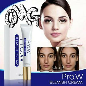 Magic Pro.W Blemish Cream Spots Removal Treatment Pimple Ointment Scar Mark A++