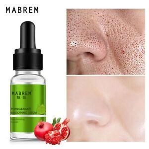 Face Shrink Pores Whitening Regeneration Moisturizing SkinCare Acne serum liquid