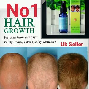 Very Effective Yuda-No1 Fast Hair growth serum oil 100% Natural Extract UK