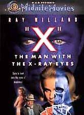 X - The Man with the X-Ray Eyes DVD, Ray Milland, Diana Van der Vlis, Harold J.