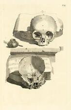 "Govard Bidloo : ""Human Skull (Table 89)"" (1685) — Giclee Fine Art Print"