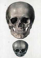 ML01 Vintage 1800's Medical Adult & Infant Skull Antique Poster Re-Print A4