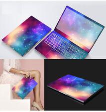 Dazzle Vinyl Laptop Special Sticker Skin For Lenovo ideapad 320S-15