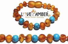 Raw Honey Baltic Amber Child Anklet Bracelet Blue Turquoise Howlite Bluebird