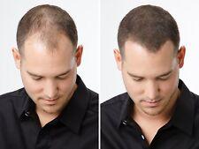 LIVRAISON 48H!! 25g Kératine ANTI CALVITIE Poudre capillaire Cheveux Densifiante