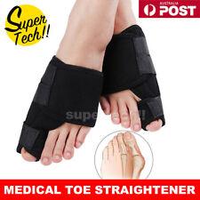 2PCS Hallux Valgus Relief Foot Pain Big Toe Bunion Splint Straightener Corrector
